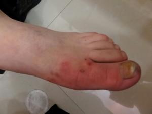 London-Eczema-treatment-001-before
