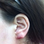 London-Keloid-removal-001-before-after