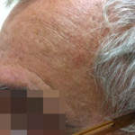 London-Melanoma-removal-001-before-after-1