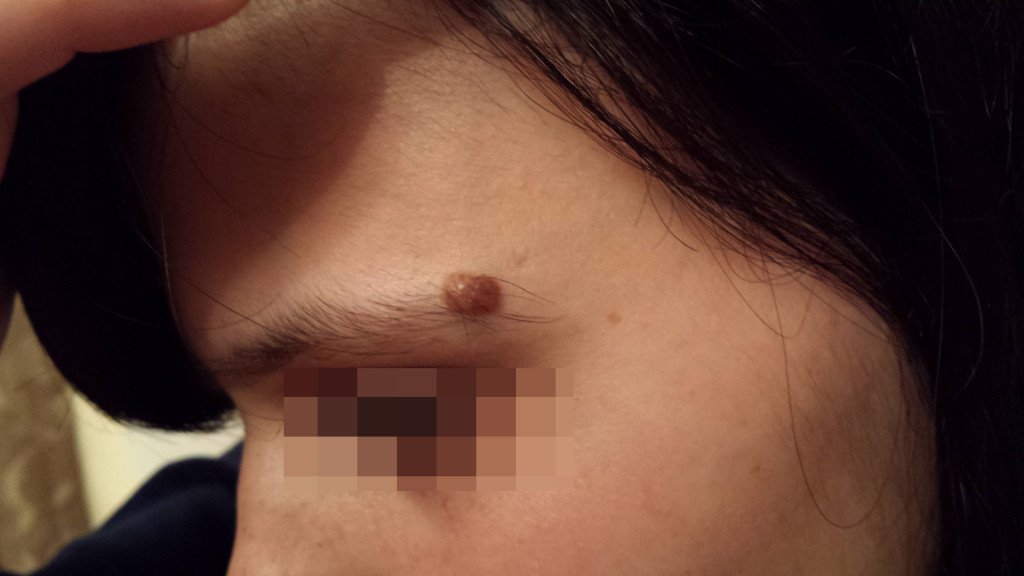 London-Moles-Removal-ID77002-Before-20160128c1