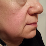London-Moles-Removal-ID77038-Before-20160126_223628