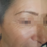 London-Moles-removal-003-before-after-1