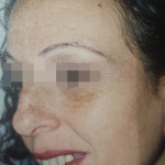 London-Moles-removal-008-before-after-1