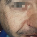 London-Moles-removal-013-before-after1-1