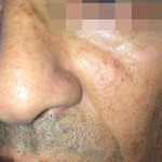 London-Moles-removal-015-before-after-1