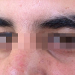 London-Moles-removal-017-before-after-2