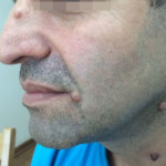 London-Moles-removal-020-before-1