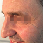 London-Moles-removal-020-before-after-1
