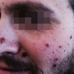 London-Nevus-removal-002-before-1