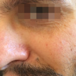 London-Nevus-removal-002-before-after-1