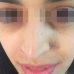 London-Nevus-removal-003-before-after-1