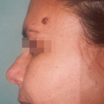London-Nevus-removal-004-before-1