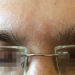 London-Nevus-removal-005-before-after-1