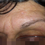 London-Nevus-removal-006-before-after-1