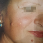 London-Nevus-removal-009-before-1