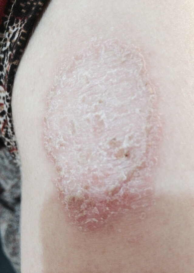 London-Psoriasis-treatment-001-before