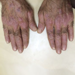 London-Psoriasis-treatment-002-before-after-1