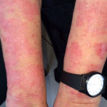 London-Psoriasis-treatment-003-before-1