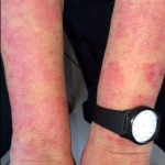 London-Psoriasis-treatment-003-before