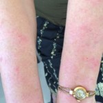 London-Psoriasis-treatment-003-before-after