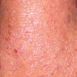 London-Psoriasis-treatment-004-before-after-1