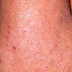 London-Psoriasis-treatment-004-before-after