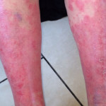 London-Psoriasis-treatment-005-before-2