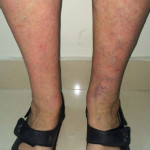 London-Psoriasis-treatment-005-before-after-1