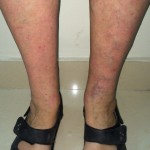 London-Psoriasis-treatment-005-before-after