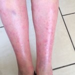 London-Psoriasis-treatment-005-before1