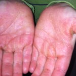 London-Psoriasis-treatment-006-before-after
