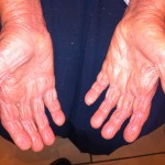 London-Psoriasis-treatment-007-before-after