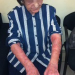 London-Psoriasis-treatment-007-before2-1