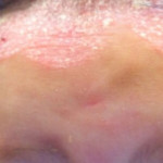 London-Psoriasis-treatment-011-before-1