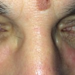 London-Skin-Growth-treatment-001-before