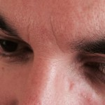 London-Skin-Growth-treatment-001-before-after