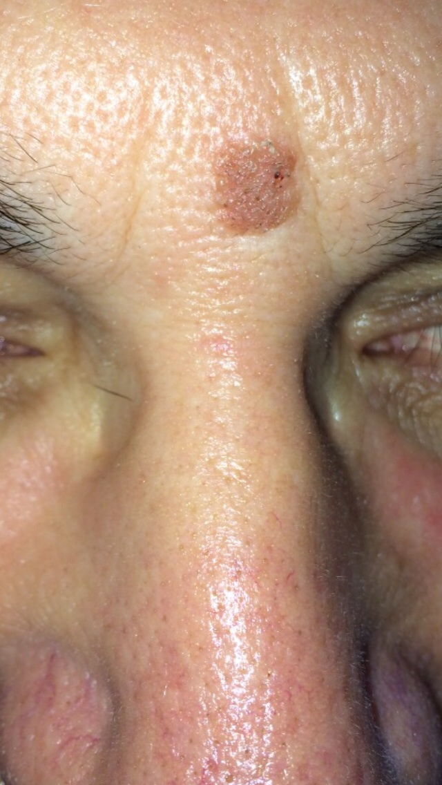 London-Skin-Growth-treatment-001-before