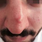London-Skin-Growth-treatment-003-before-1