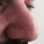 London-Skin-Growth-treatment-003-before-after-1