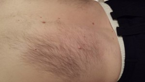 London-Skin-Tags-removal-ID77020-Before-20160126_205426