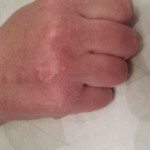 London-Warts-Removal-ID77011-Before-After-20160128_213826