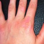 London-Warts-treatment-002-before