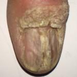 London-Warts-treatment-004-before