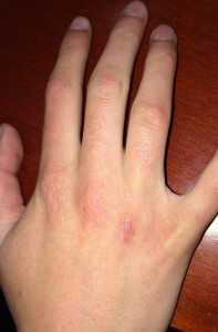 London-Warts-treatment-005-before-after