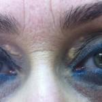 London-Xanthelasma-treatment-001-before