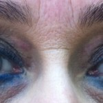 London-Xanthelasma-treatment-001-before-after