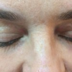 London-Xanthelasma-treatment-002-before-after