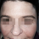 London-Xanthelasma-treatment-002-before-after1-1