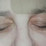 London-Xanthelasma-treatment-003-before-1