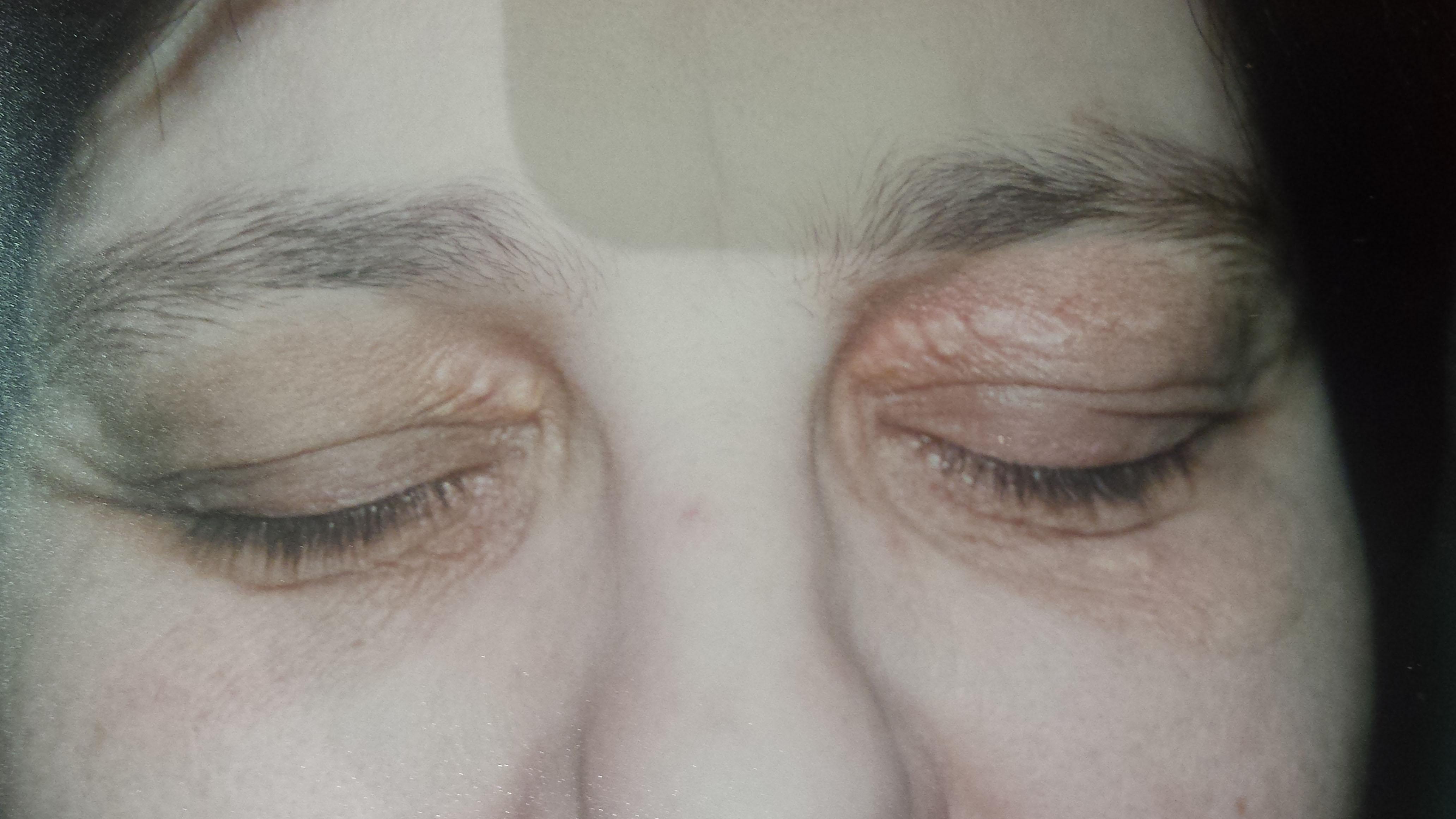 London-Xanthelasma-treatment-003-before-1